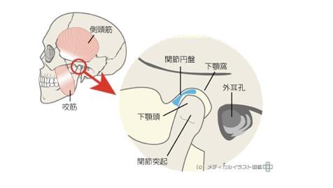 大阪府茨木市 茨木からだ整骨院 顎関節症 イメージ