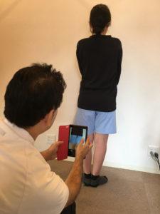 O脚矯正の流れ④アフターの写真撮影