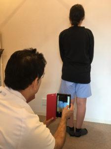 O脚矯正の流れ①ビフォー写真撮影