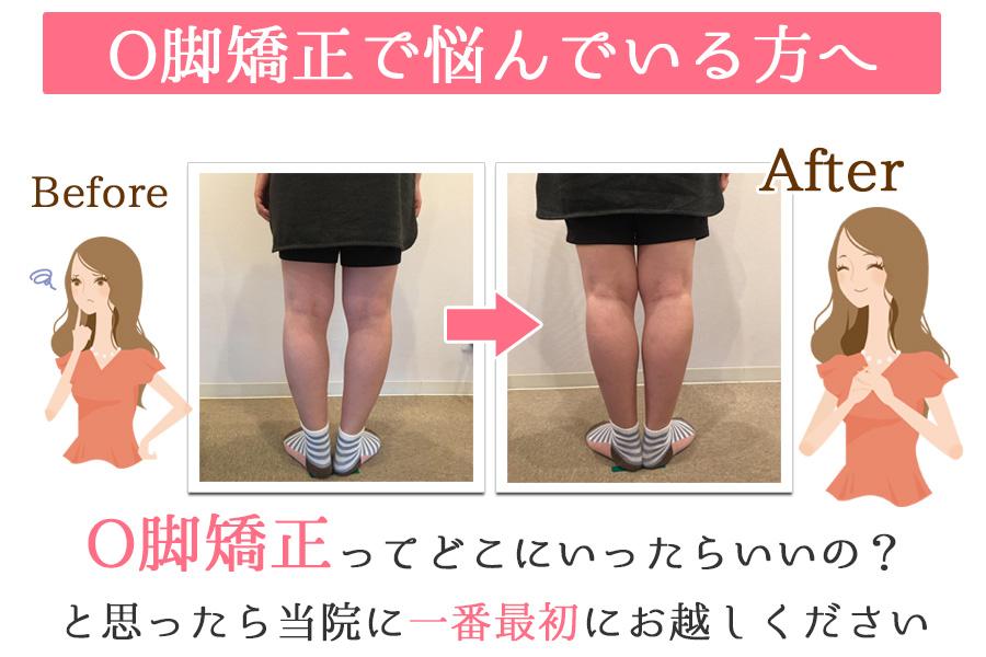 大阪府茨木市でO脚矯正で悩んでいる方へ